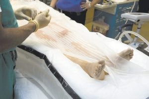 A Thermosuit in-use is placed on top of the patient at Ochsner Hospital in Jefferson, La., a suburb of New Orleans. A pump rapidly inflates the bean-shaped plastic pool around the patient as doctors Velcro on a plastic topsheet. Tubes spray naked patients with frigid water as other tubes drain it away, taking heat from the patient's skin with it. (AP Photo)