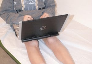 """In these photos provided by the journal Pediatrics, a 12 year-old boy is pictured using a laptop balanced on his bare legs which (right) show evidence of """"toasted skin syndrome."""" According to recent medical reports, exposing skin to the high temperatures created by laptops can lead to the syndrome, an unusual-looking mottled skin condition caused by long-term heat exposure."""