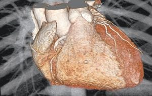 This image provided by Drs. Udo Hoffmann and Michael Lu, of Massachusetts General Hospital, shows a 3-D fast CT scan computer rendering of a heart in a patient who has stable chest pain. A new study shows that people checked with a heart CT scan after seeing a doctor for chest pain have no less risk of heart attack, dying or being hospitalized months later than those who take a simple treadmill test or other older exam.