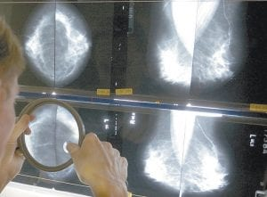 A radiologist uses a magnifying glass to check mammograms for breast cancer. Screening for cancer has gotten more complicated in recent years with evolving guidelines that sometimes conflict. Now a doctors' group aims to ease some confusion. (AP Photo)