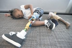 Miyah Williams, 3, wearing her prosthetic leg, rested at a meeting on the need for new pediatric medical devices hosted by Children's National Health System. Miyah struggled with a painful and hard-to-move socket attaching her prosthesis until last August, when she received a new softer and more flexible kind. Miyah's old prosthesis lies on the floor. (AP Photo)
