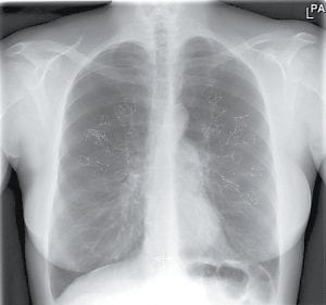 This photo depicts an X-ray of lungs after the PneumRx Endobronchial Coil treatment procedure. The technique involves inserting several small metal alloy coils through a scope into the lungs, aiming to tighten diseased tissue and open up healthy airways. (BTG PLC via AP) A right is a rendering of the PneumRx Endobronchial Coil.(BTG PLC via AP)
